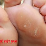 Bệnh mụn cóc ở bàn chân