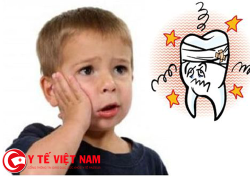 Bệnh sâu răng ở trẻ em ngày càng phổ biến