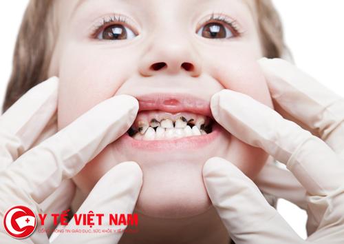 Đồ ngọt là nguyên nhân chính dẫn đến bệnh sâu răng ở trẻ em