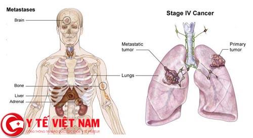Bệnh ung thư buồng chứng biến chứng di căn gan và phổi