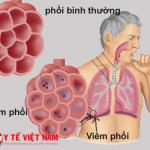 Bệnh viêm phổi.
