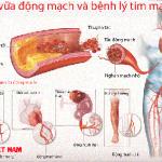 Bệnh xơ vữa động mạch.