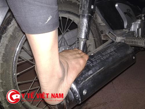 Cần cẩn trọng để tránh bị bỏng bô xe máy