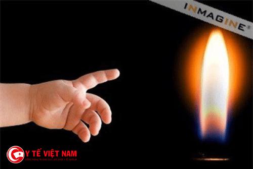 Lửa là một trong những nguyên nhân bỏng ở trẻ em