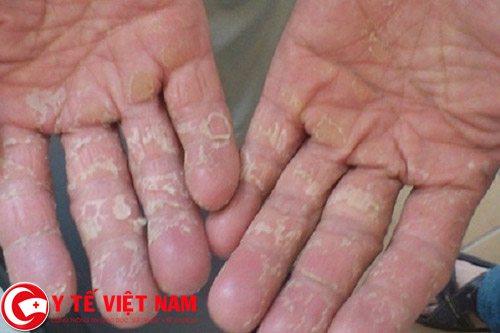 Nguyên nhân gây ra bệnh khô da