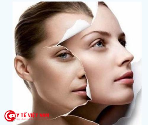 Phương pháp căng da mặt nội soi đệp tự nhiên