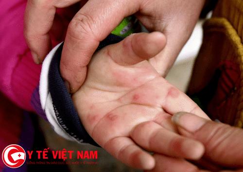 Mụn đỏ là dấu hiệu của cấp độ bệnh tay chân miệng đầu tiên.