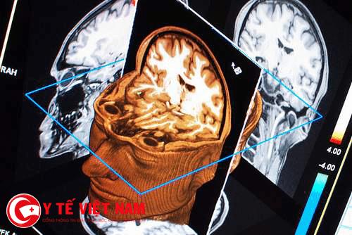 Hình ảnh điều trị chấn thương sọ não