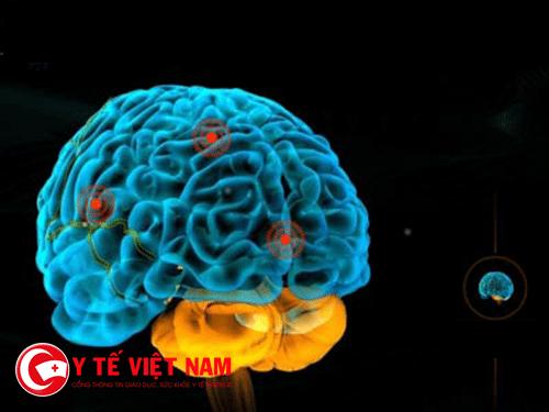 Hình ảnh chấn thương sọ não
