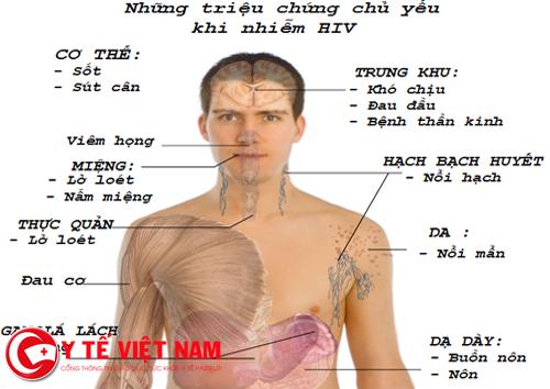 Các dấu hiệu của HIV
