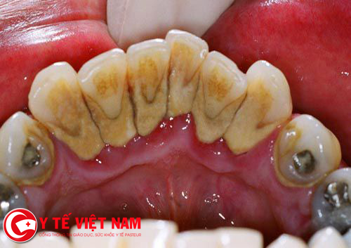 Răng ngả màu là dấu hiệu của sâu răng