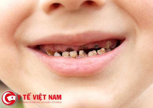Dấu hiệu bị sâu răng
