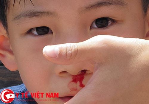 Bị chảy máu cam thường xuyên