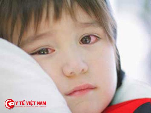 Trẻ rất dễ bị đau mắt đỏ