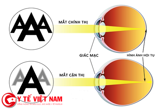 Cách chữa cận thị bằng phương pháp tự nhiên không cần phẫu thuật