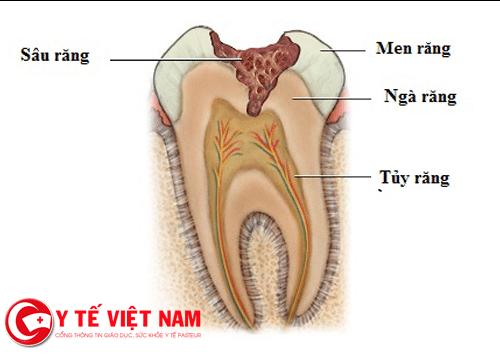Bệnh sâu răng có nhiều biến chứng nguy hiểm