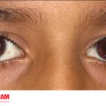 Đục thủy tinh thể ảnh hưởng rất lớn đến thị giác của trẻ