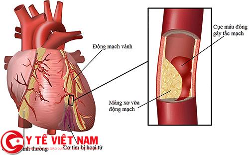 Hình ảnh bệnh động mạch vành