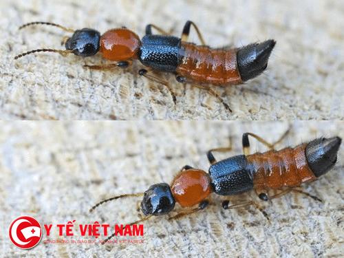 Nọc độc của kiến ba khoang gấp 12-15 lần rắn hổ