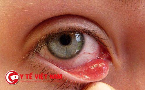 Chữa lẹo mắt bằng phương pháp châm cứu