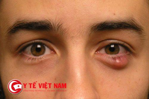 Lẹo ở mắt có nguy hiểm hay không?