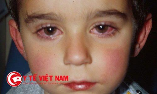 Những điều cần tránh khi trẻ bị lẹo mắt