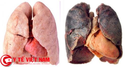 Bệnh viêm gan A khiến gan bị tổn thương