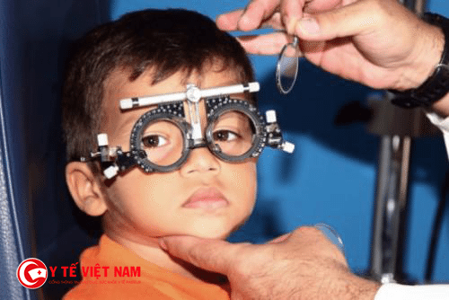 Loạn thị cần được điều trị kịp thời