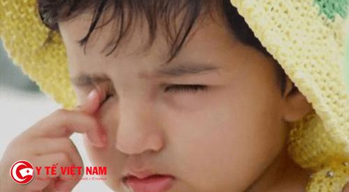 Trẻ thường bị đau mắt, mỏi mắt khi bị loạn thị