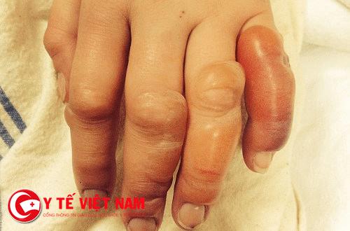 Sưng đỏ, phù nề do nhiễm trùng vết thương