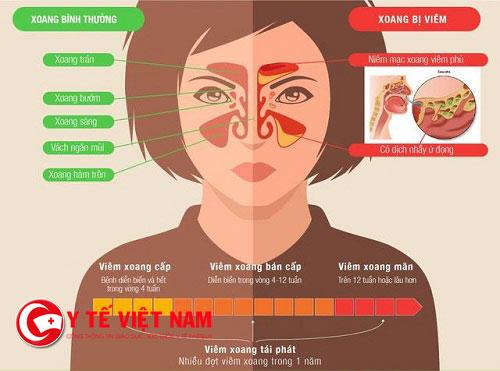 Cách phân biệt viêm mũi dị ứng và viêm xoang mạn tính