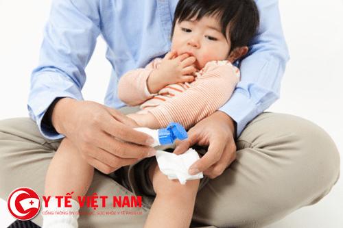 Sơ cứu trẻ khi bị bỏng hiệu quả
