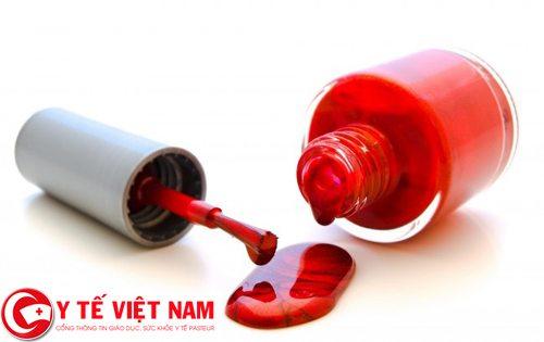 Phòng ngừa ung thư máu bằng cách không tiếp xúc với hóa chất độc hại