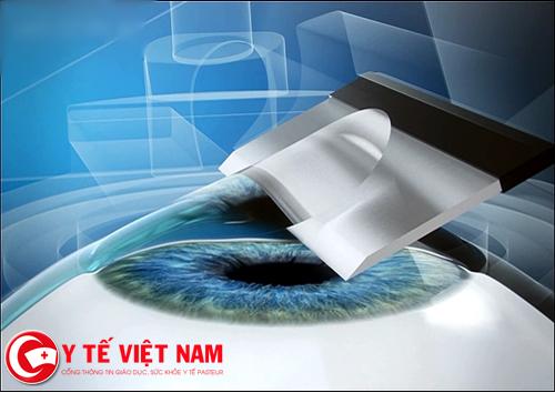 Phương pháp điều trị cận thị bằng phẫu thuật SBK LASIK
