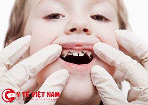Trẻ bị sâu răng sữa