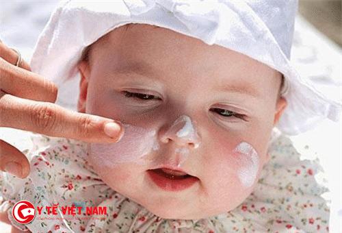 Nên thoa kem dưỡng ẩm cho bé để hạn chế dị ứng thời tiết