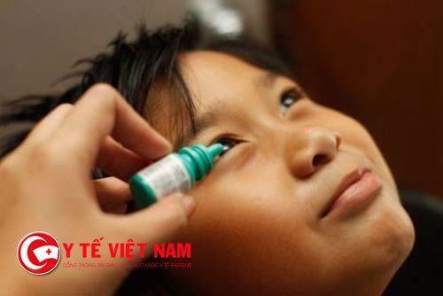Thuốc kháng sinh điều trị bệnh viêm kết mạc