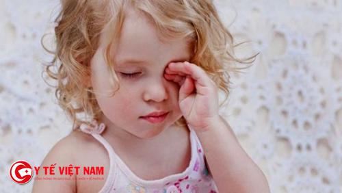 Bạn không nên cho trẻ dụi mắt khi bị đau mắt đỏ