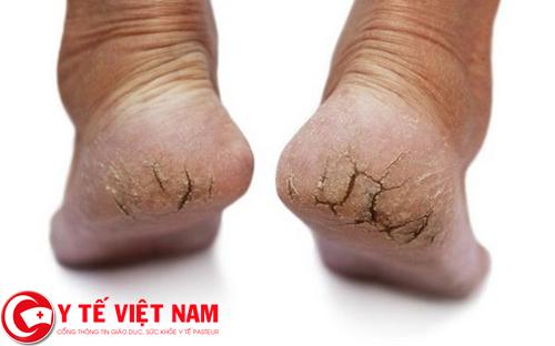 Nguyên nhân gây ra bệnh nứt gót chân