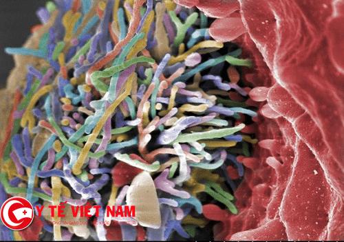 Triệu chứng cảnh báo bệnh áp xe gan