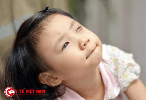 Trẻ cần được điều trị sớm để hạn chế những biến chứng nguy hiểm xảy ra