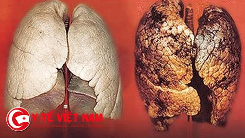 Hình ảnh ung thư phổi