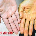 Bệnh viêm gan A có chữa khỏi được không?