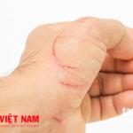 Vết thương nhiễm trung gây bệnh uốn ván