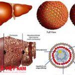 Bệnh viêm gan A là gì?