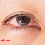 Đau mắt đỏ ở trẻ em có rất nhiều biến chứng