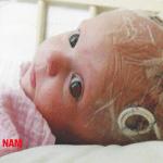 Trẻ rất dễ bị viêm màng não vào thời điểm giao mùa