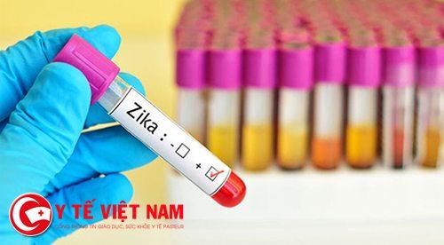 Virus Zika đã xuất hiện tại Việt Nam từ lâu