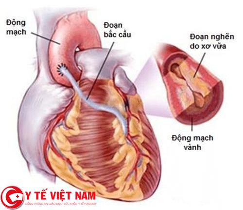 Nguyên nhân gây ra bệnh thiếu máu cơ tim