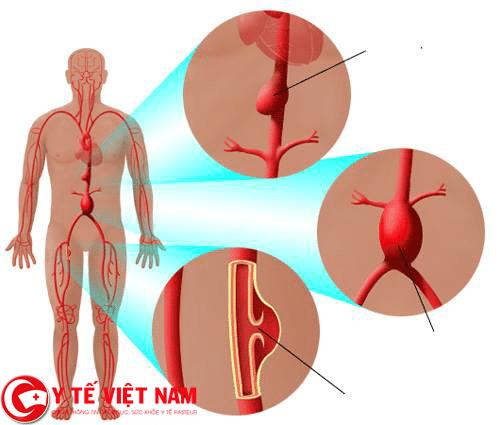 Động mạch đưa máu tới tim bị tắc nghẽn gây ra bệnh thiếu máu cơ tim